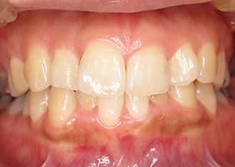 出っ歯治療前