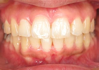 出っ歯治療後