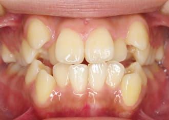 八重歯治療前