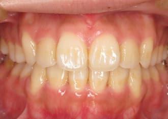 八重歯治療後